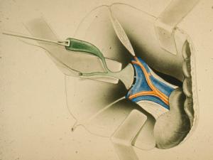 Fig. 2 Isolamento delle vie biliari atresiche